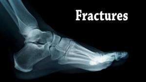 broken-foot