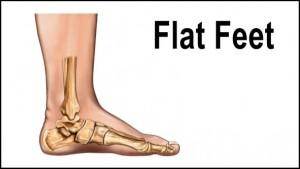 flat-feet5