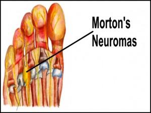 mortons-neuroma2