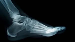 fractures1