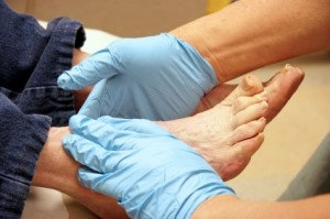 diabetic-foot-care3